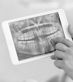 Рентген зубов ребенку фото