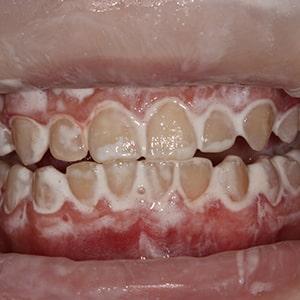 в процессе профессиональной гигиены полости рта фото