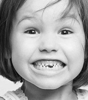 Удаление молочных зубов фото