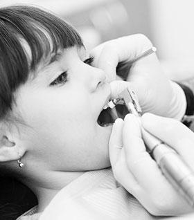 Снятие зубных отложений у ребенка фото