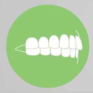 нижние зубы смыкаются передними изображение