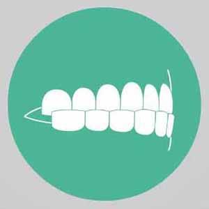 верхние зубы перекрываются нижними изображение