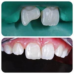 Реставрация переднего зуба фото до и после